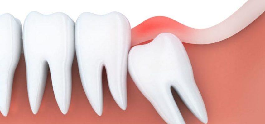 remove wisdom teeth
